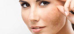 Come eliminare le macchie dal viso